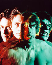 Bill Bixby as Dr. David Bruce Banner in The Incredible Hulk 24X30 Poster