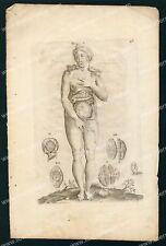 Médecine  Du Laurens Anatomie Femme Enceinte - Gravure Planche Originale 17e