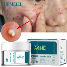 UK Acne Treatment Face Anti Acne Scar Removal Pimple Blackhead Moisturizing
