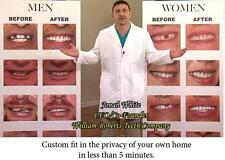 TOP VENEERS INSTANT SMILE BEAUTIFUL TEETH new dentures COSMETIC MAKEOVER NEW