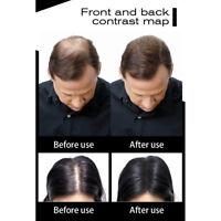 100% Natural Keratin Hair Building Fiber Refill Hair Hair Fiber Thickening Hair