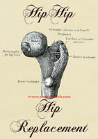 Hip, Hip, Hip Replacement Card ~ Unusual Get Well Card - PM-HH010