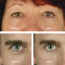 Eyelift Kit under eye enhancer removes lines, wrinkles & bags for perfect eyes!