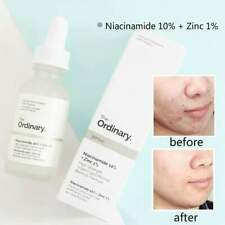 The Ordinary Niacinamide 10% Zinc 1% High Strength Vitamin Mineral Serum 30ml
