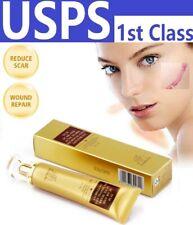 30g Lanbena Face Body Scar Remove Cream Acne Spot Pimple Mark Remove Skin Repair