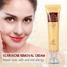 Acne Scar Removal Cream Skin Repair Face Care Cream Acne Spots Treatment New 30g
