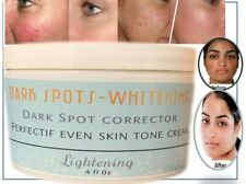 Remove freckle speckle peels dark spot face facial skin whitening cream paño