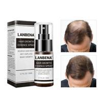 LANBENA Ginseng Herbal Hair Fast Growth Liquid Essence Spray Anti Hair Loss Care