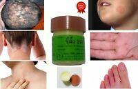 1 Natural Herbal Eczema Fungus Itch Dermatitis Psoriasis Tinea Scabies Foot Skin