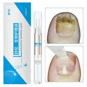 2Stk GEGEN NAGELPILZ - Anti Nagelpilz Stift Behandlung Gel Hände Füße Pflege 3ml