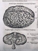 Chirurgie du Cerveau en 1614 Neurologie Médecine Ambroise Paré Rare Gravure