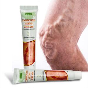 100%Original Vasculitis Blood Circulation Varicose Veins Treatment New Cream 20g