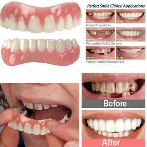 2 Pcs Top + Bottom Veneers False Teeth  Smile Denture Perfect