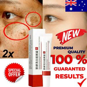2x Whitening Freckle Cream Remove Skin Melasma Acne Pigment Melanin Dark Spots