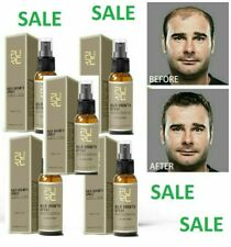 5x----Hair Growth Spray 30 DAYS Grow, hair lossTreatment Preventing 30ml