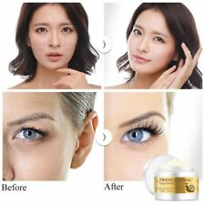Acne Scars Moisturizing Hyaluronic Acid Cream Face Care Snail Anti-aging Cream