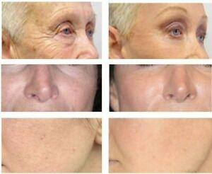 Matrixyl 3000 Hyaluronic Acid Retinol Vitamin C Peptide Collagen AntiAging Cream