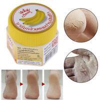 1 Stück Hand Fuß Riss Creme Ferse Rissige Peeling Anti-Dry Banana Repair Fuß OOC
