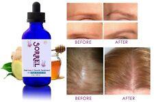Sorrel Capilar Health Hair Drops Loss Treatment Edge Growth Serum Dropper 4oz