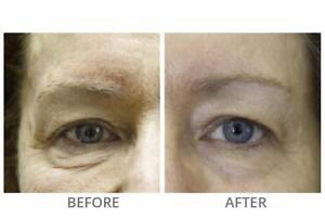 iPretty new FACE LIFT Microcurrent Bio Derma Roller Eye Chin Faradic Toning Wand