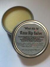 "ROSE HIP  Organic Salve  Balm  Ointment 1 ounce  "" What-Ails-Ya"" Unisex"