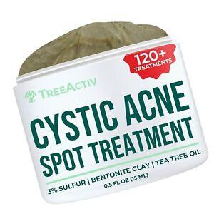 TreeActiv Cystic Acne Spot Treatment, 3% Sulfur Blemish Remover for Men, Wome...