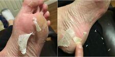 ⭐️ Original Genuine Baby Foot Peel From Japan Free Foot Cream Sold Lots!! ⭐️