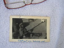 Elephantitis Elephantiasis Disease Abnormal Odd India Vintage Photo