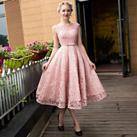 Tea Length Formal Ball Party Evening Dress Lace Beads Cocktail Prom Pageant Gown