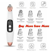 Electric Blackhead Remover Pore Vacuum Suction Dermabrasion Cleaner Face Care