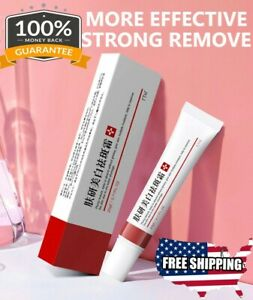 Dark Spots Whitening Freckle Cream Remove Skin Melasma Acne Spot Pigment Melanin