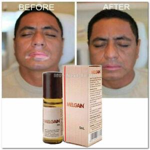 Melgain Lotion for Vitiligo White Spots Patches Re Pigmentation 5ml USA