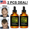 2 PCS Cosmetics Castor Oil Organic Grow Hair Long & Thick FAST