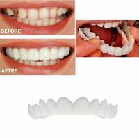 snap on smile faccette dentali superiori protesi mascherine sorriso dei denti