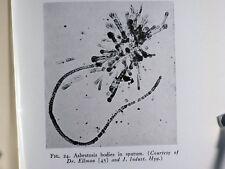 1935 Industrial Medicine Asbestos Dust Asbestosis Philip Drinker W Irving Clark
