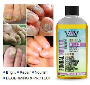Anti Fungal Treatment Fungus Effective Finger Toe Nail Repair Liquid Solution UK