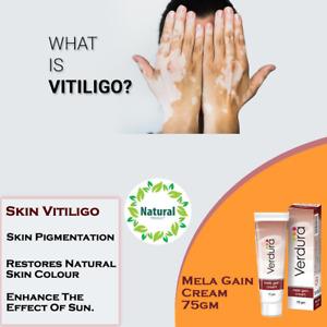 HYPERPIGMENTATION - Natural Pigmentation Removal Skin Cream Vitiligo Cream 75gm