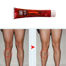 30g Varicose Veins Miracle Cream Ointment Relief Pain Vasculitis Phlebitis