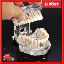 New Dental Implant Disease Teeth Model with Restoration & Bridge Tooth Study