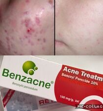 Benzoyl 10% gel 30g Acne Treatment + FREE GIFT Retinol 30g Wrinkle Cream!