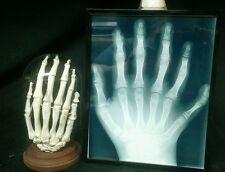 ARTICULATED SIX FINGER HAND DISPLAY,SIDESHOW GAFF,ODDITY,DEFORMED,FREAK,ODD,