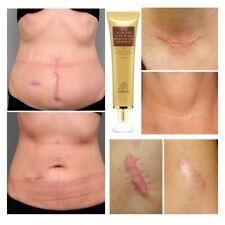 Face Repair Gel Body Skin Scar Stretch Marks Burn Spots Removal Cream 30g