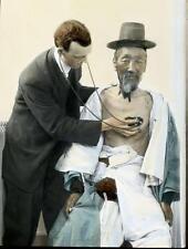 Photo. 1910s. Korea.  Medical Exam