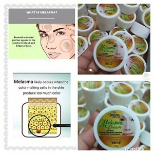 Melasma Cream Remove Dark Acne Sun Spot Melasma Hyperpigmentation 100% Effective