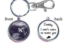 Baby Ultrasound Sonogram Keychain Double-Sided (2 sides) Gifts for Dad or Mom