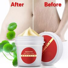 Cream For Stretch Mark Scar Removal Powerful To Stretch Maternity Recovering New