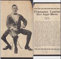 Circus Freak 3-Legged Francesco Lentini Sideshow Act 4x6 Advertising Trade Card