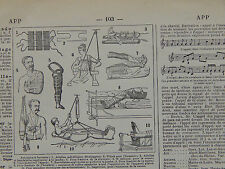 Larousse, French, In text Illustrations c.1923 Medical Cast Support #04