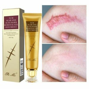 Acne Scar Removal Cream Gel Face Pimples Stretch Marks Cream Repairing Smoothing
