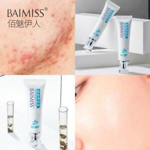 BAIMISS Acne Treatment Cream Anti Acne Remover Facial Repair Comedone Pimple Qui